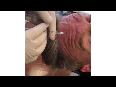 Botox on Male Patient's Forehead by Dr. Saltz - Saltz Plastic Surgery