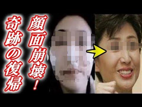 【衝撃】芦川よしみ「顔面事故」からの復帰と現在