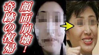 【衝撃】芦川よしみさん「顔面強打事故」から奇跡の復帰を遂げた今をご...
