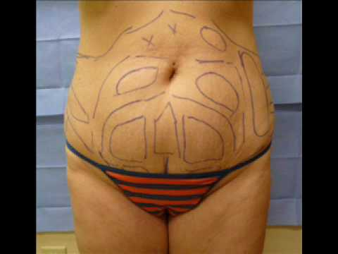 Laser Lipo (Liposuction or Smart Lipo) Before and After