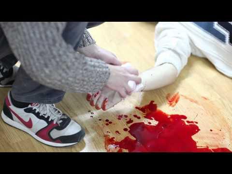 Кровотечения и способы их остановки