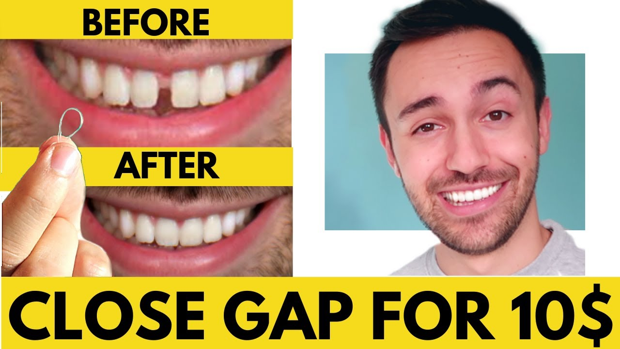 CLOSE Gap Teeth FAST with Rubber Bands AT HOME (Cheap ...