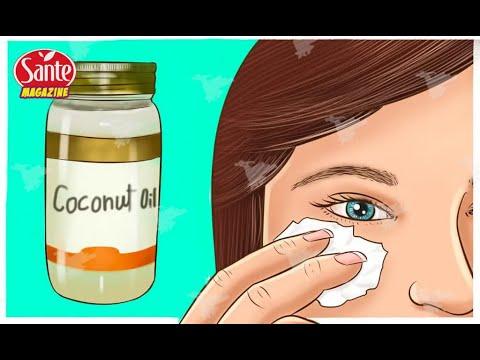 L'huile de coco peut vous faire paraître 10 ans plus jeune si vous l'utilisez pendant 2 semaines de