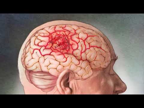Малышева перечислила первые симптомы начала рака мозга