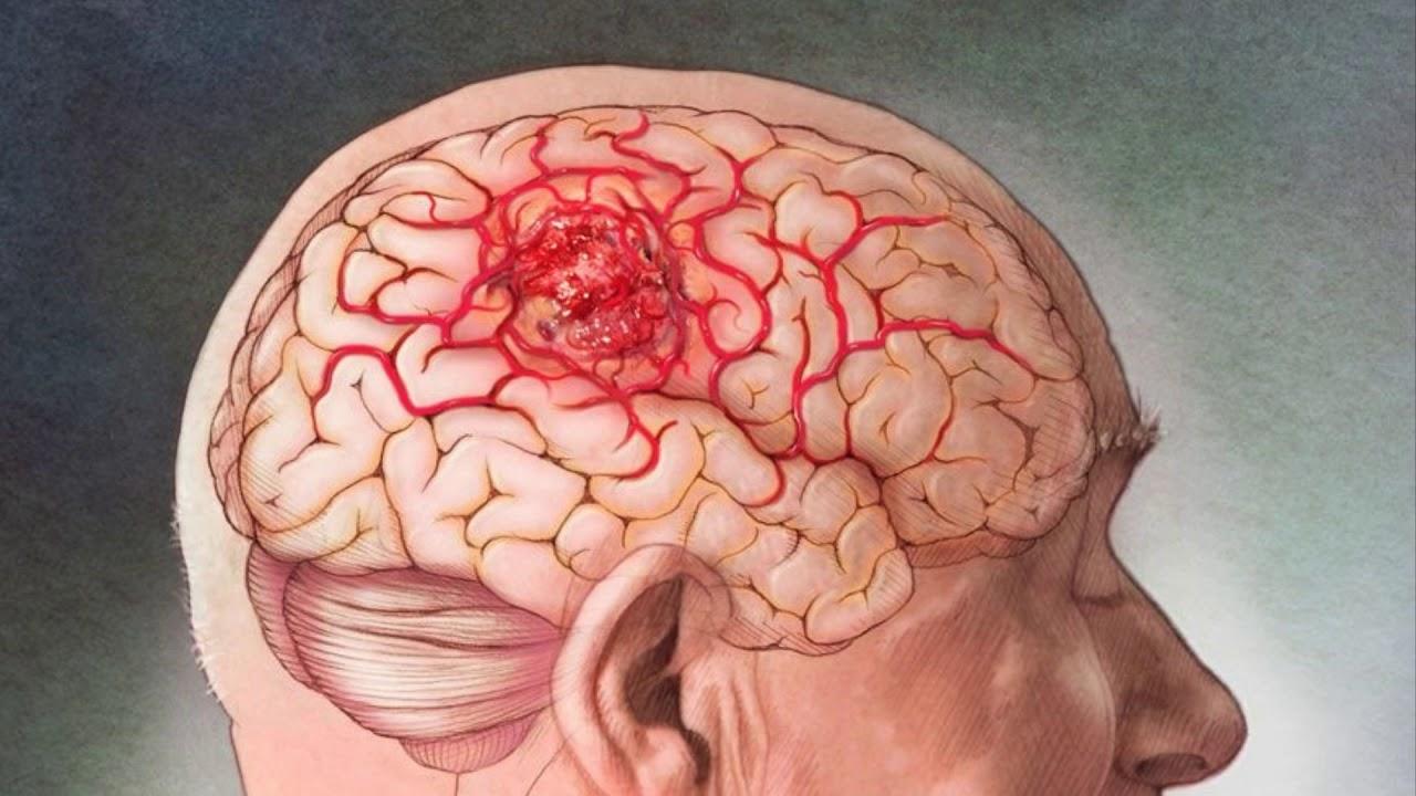 картинка рака мозга