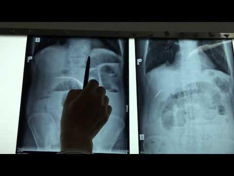20141210 Đọc X-quang tắc ruột
