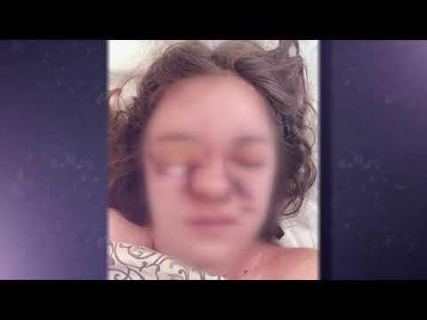 Відповідати нікому: на Запоріжжі 17-річній красуні прострелили голову