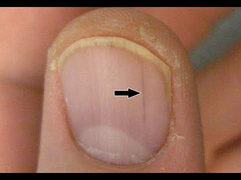 how to get a deep splinter out - Myhiton