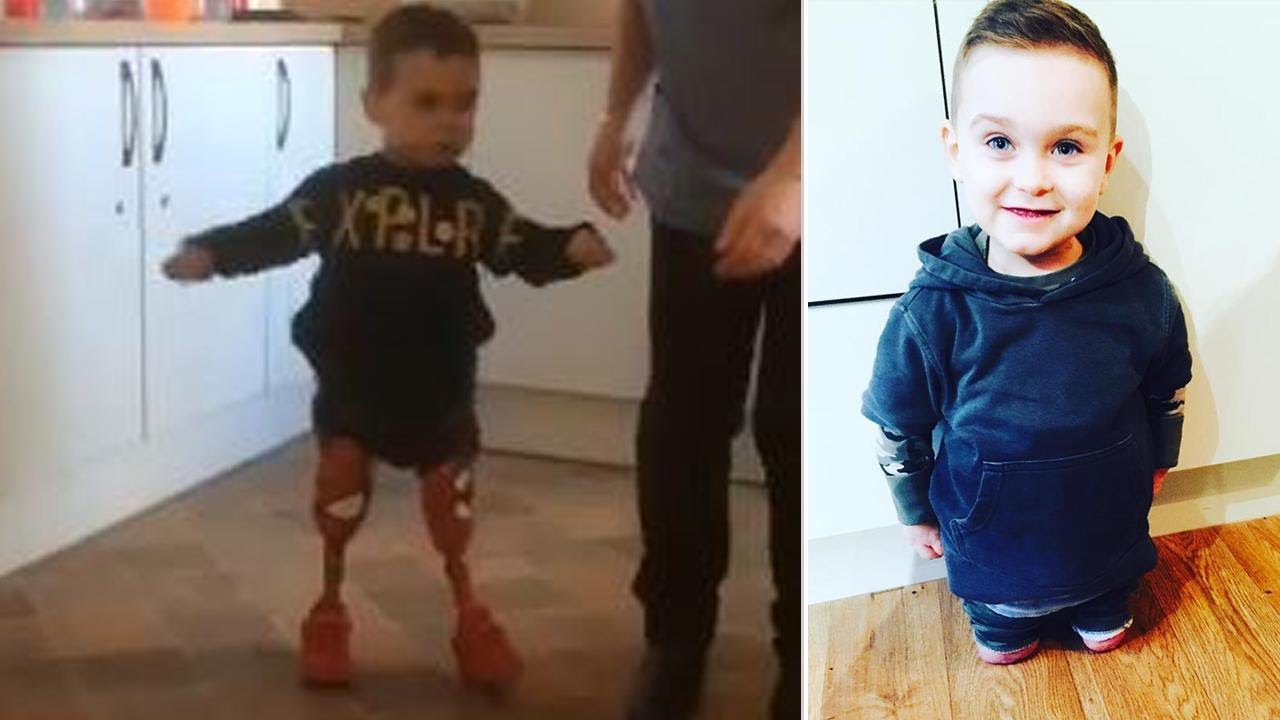 3-Year-Old Amputee Takes First Steps By Himself On -4096