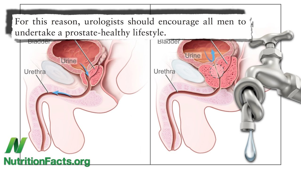 dieta vegana para próstata agrandada
