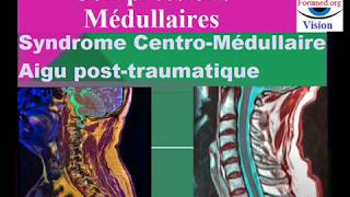 Compression Médullaire: Syndrome centro-médullaire post-traumatique