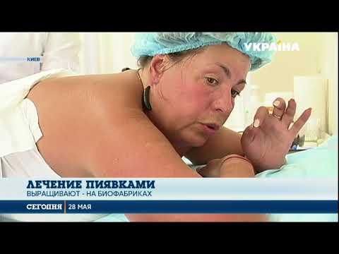 Гирудотерапия: от каких болезней помогают избавляться пиявки