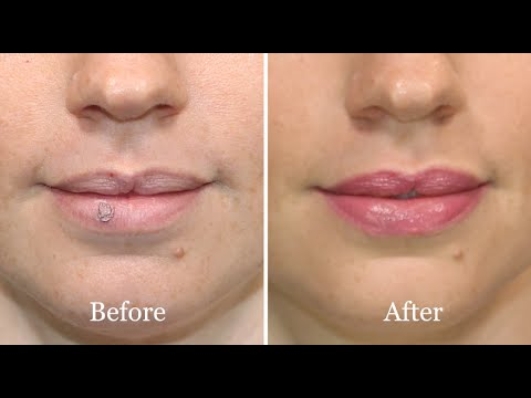 How-to: conceal a cold sore