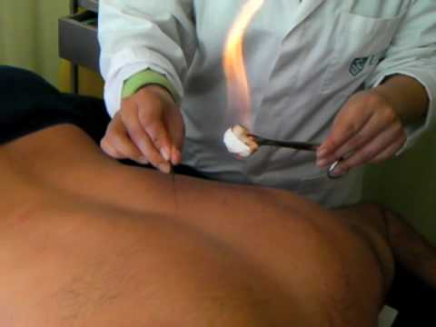 Part 3 Fire Needle Acupuncture: Treatment for Back Pain