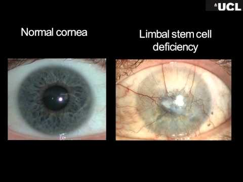 Stem cell treatments for cornea scaring in aniridia