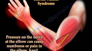 Cubital Tunnel Syndrome Ulnar Nerve Entrapment - Everything You Need To Know - Dr. Nabil Ebraheim