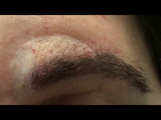 Dallas Eyebrow Hair Transplant Correction for Tumor
