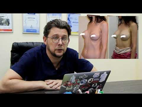 Капсульная контрактура после увеличения груди. История одной пациентки