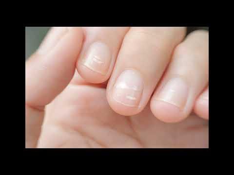 Что за белые полоски появляются на ногтях?