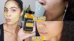 hqdefault - Tumeric For Acne Cysts