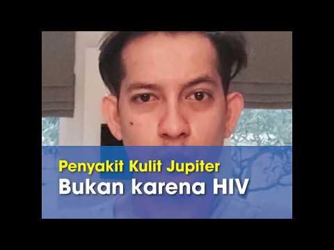 Diributkan Terserang Virus HIV, Penyebab Penyakit Kulit Jupiter Fortissimo Dibeberkan Pengacaranya