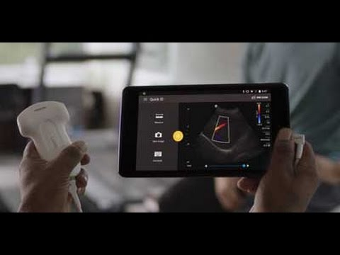 Handheld, portable ultrasound machine | Philips Lumify