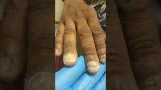 Fungus of the fingernails?