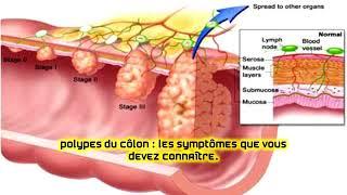 Polypes du côlon : les symptômes que vous devez connaître