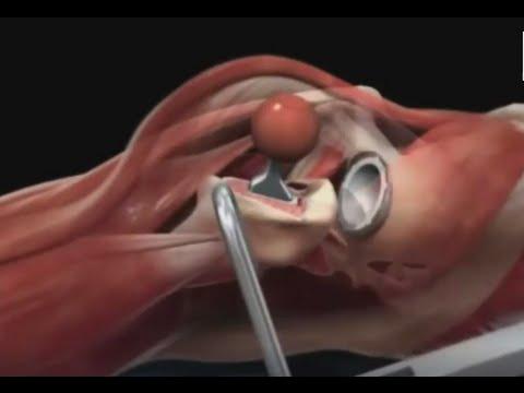 Анимации по эндопротезированию коленного сустава несколько месяцев болит локоть