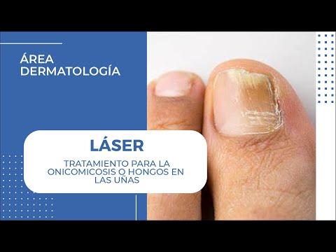 Codo Golfista Epicondilitis del Codo Dr. Badia Cirujano Espcialista en Mano y Codo de YouTube · Duración:  6 minutos 30 segundos