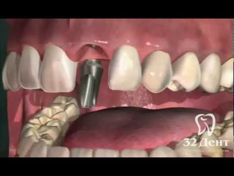 зуб имплантант