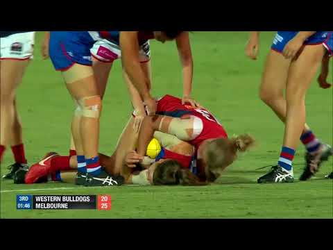 AFLW RND7 2018 Western Bulldogs vs Melbourne | Goals, behinds, highlights & team song