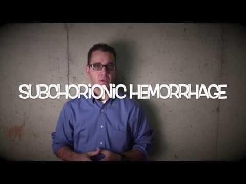 subchorionic hemorrhage - patient...