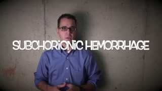 subchorionic hemorrhage - patient education video