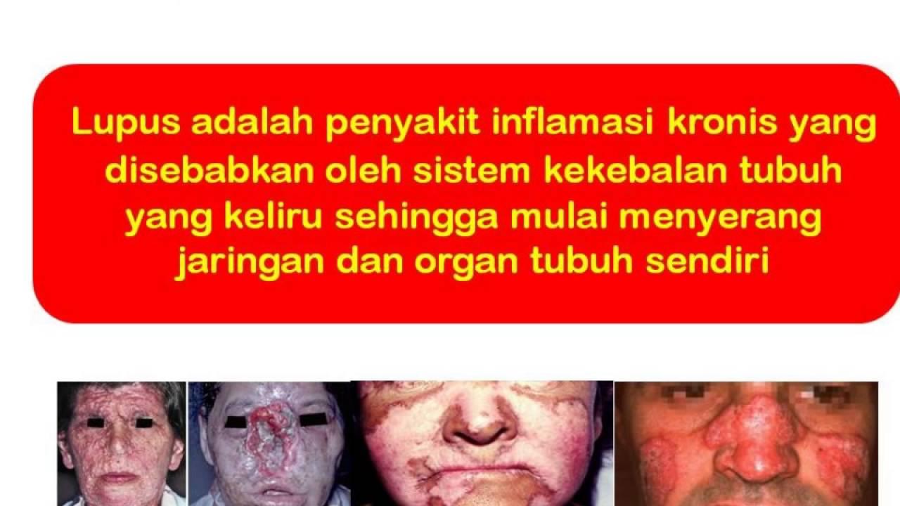 0819 0502 6967 Xl Lupus Adalah Gejala Lupus Gejala Penyakit