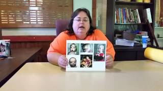 Marshall Smith Syndrome Psc Project