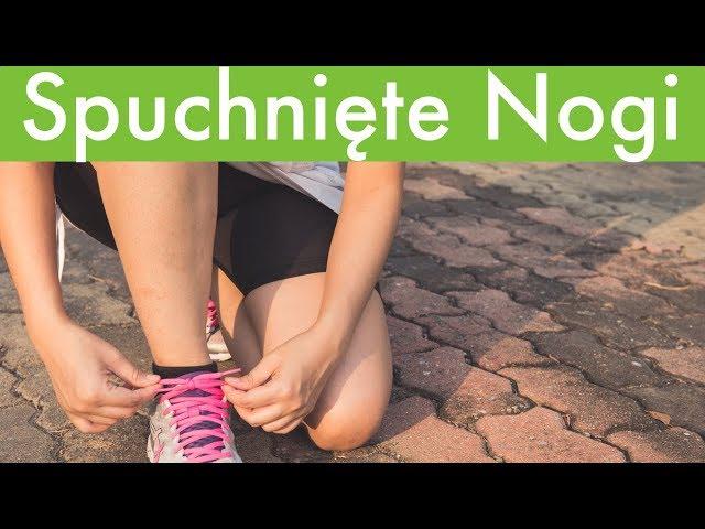 12eff739343a3 Masz problem z opuchniętymi nogami? Podpowiadamy jak sobie z tym radzić ::  Magazyn :: RMF FM