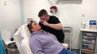 Katies Mole Removal Journey at Altruderm Clinic Glasgow thumbnail