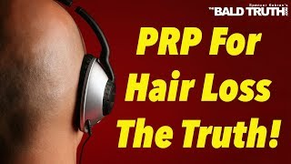 The Truth PRP for Hair Loss-The Bald Truth, Tuesday May 7th, 2019