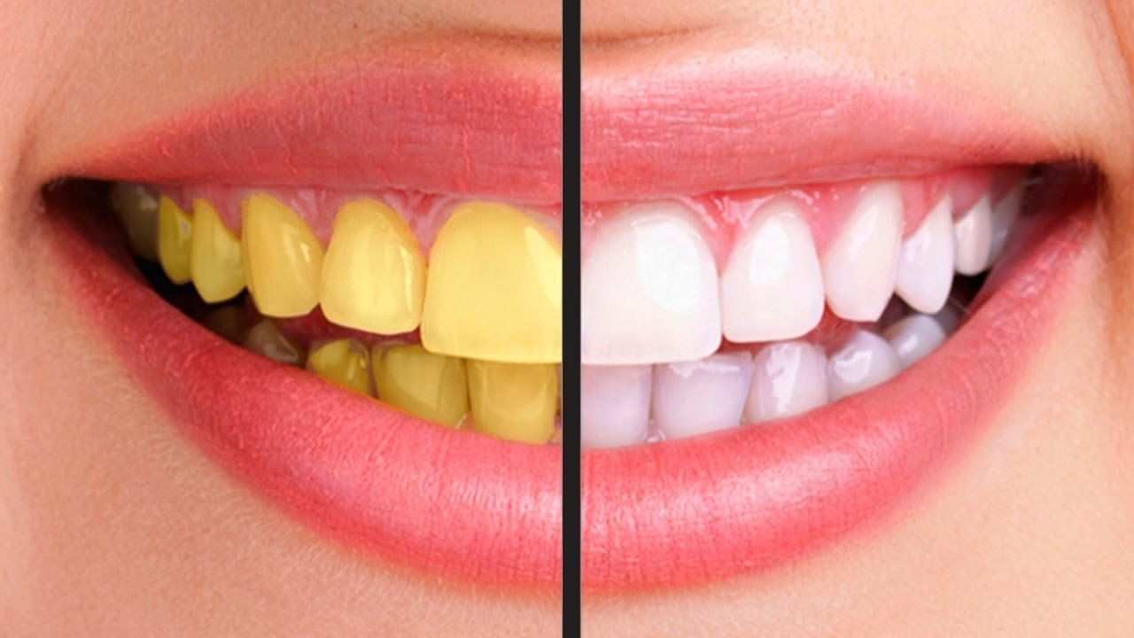 No more yellow teeth Then try this hack! It actually works ...