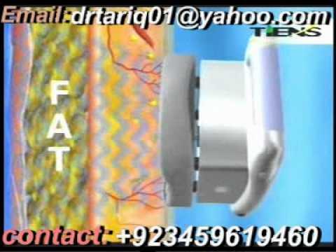 Flaxseed weight loss image 2
