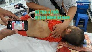 """Đội """"hiệp sĩ"""" nửa đêm cứu bé trai bị bạo hành dã man ở Tây Ninh"""