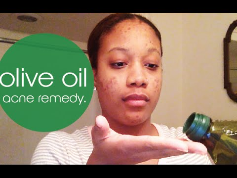 4 Min Olive Oil Acne remedy – BEAT your acne!