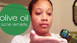 hqdefault - Is Olive Oil Good For Acne Scars