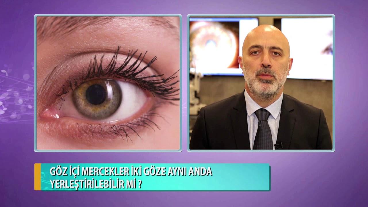 Göz içi mercekler iki göze aynı anda yerleştirilir mi? Op. Dr. Hakan Sivrikaya