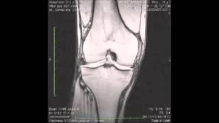 FisiocenterMultimedica.com: Cemp ionorisonanza Seqex per trattamento osteocondrite dissecante(Canale YouTube ufficiale del centro medico e fisioterapico Fisiocenter Multimedica di Mantova. All'interno del canale potrete visualizzare numerosi video sui ..., 2015-05-19T07:08:10.000Z)