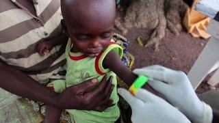 Africa, via libera al Mosquirix: primo vaccino contro la malaria
