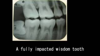 Save your wisdom tooth. Wisdom teeth uprighting, nonextraction therapy, no extraction