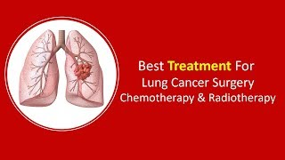 Best Treatment For Lung Cancer | Surgery, Chemotherapy & Radiotherapy