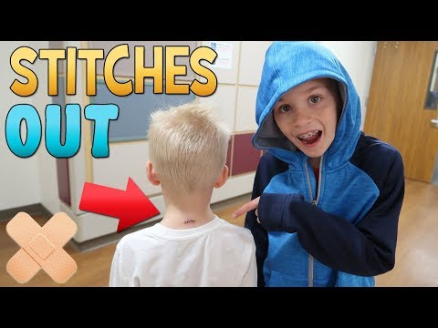 Stitches Out Party & HUGE Storm!    Mommy Monday